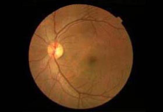 正常の視神経乳頭